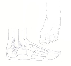 Ankle sprain diagram by Leigh Schanfein.