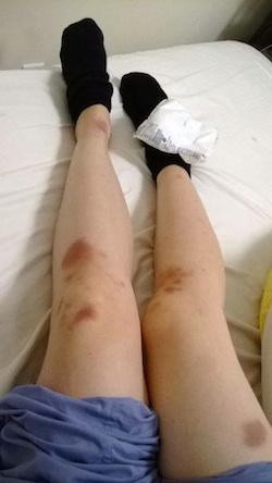 Legs with bruises